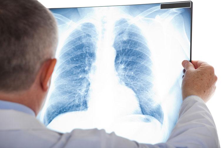 Немає тривалого пошкодження легенів після COVID у молодих пацієнтів: Дослідження